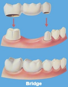 dental-bridge-1