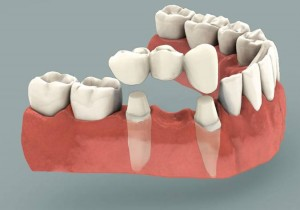 dental-bridge-2